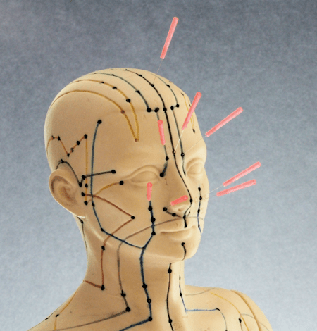 Facial Acupressure Point for Frontal Sinus Headaches