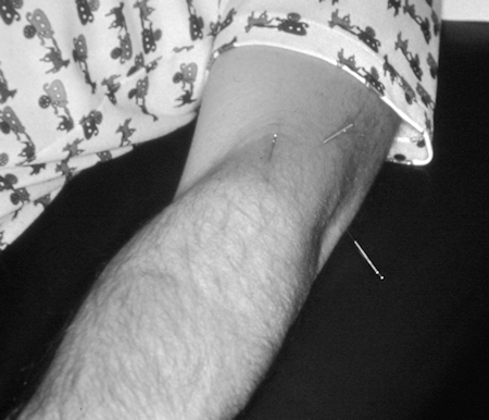 Symptomatic acupuncture treatment for tennis elbow