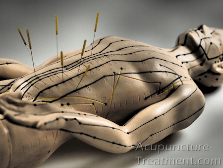 Abdominal Acupuncture Points with Needles - Male