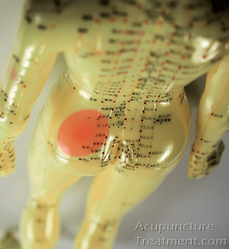 Acupuncture Treatment Sciatica