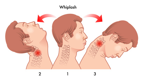 whiplash injury - Hyperflexion and Hyperextension of the Neck