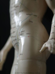 Acupuncture model hip