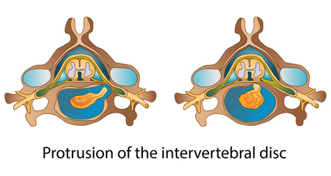 Lumbar Disk Herniation