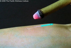 Indirect moxa - Stick moxibustion