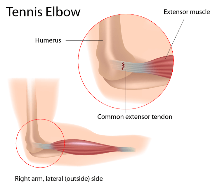 Illustration of tennis elbow (lateral epicondylitis) and common extensor tendon