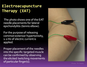 electroacupuncture-therapy